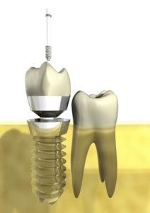 Zahnimplantat / Implantate